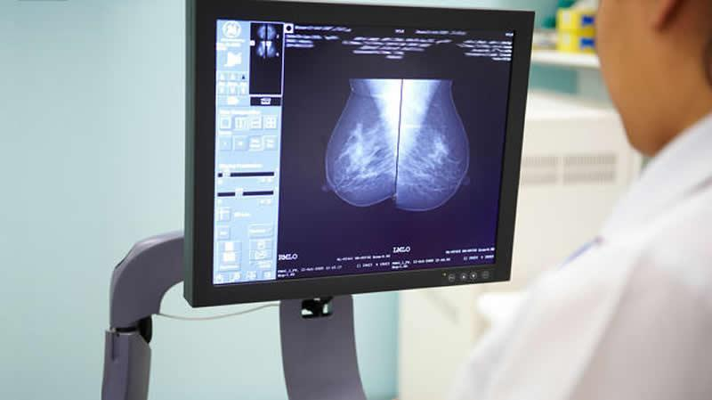 AI system outperforms radiologists in breast cancer screening