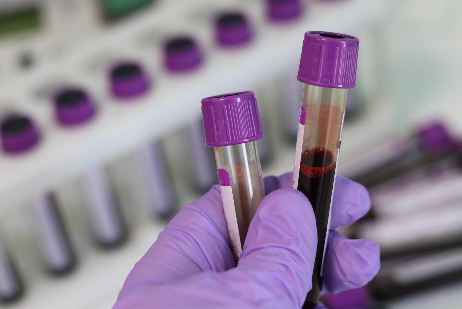 Blood test to improve ovarian cancer diagnosis - MedTech News