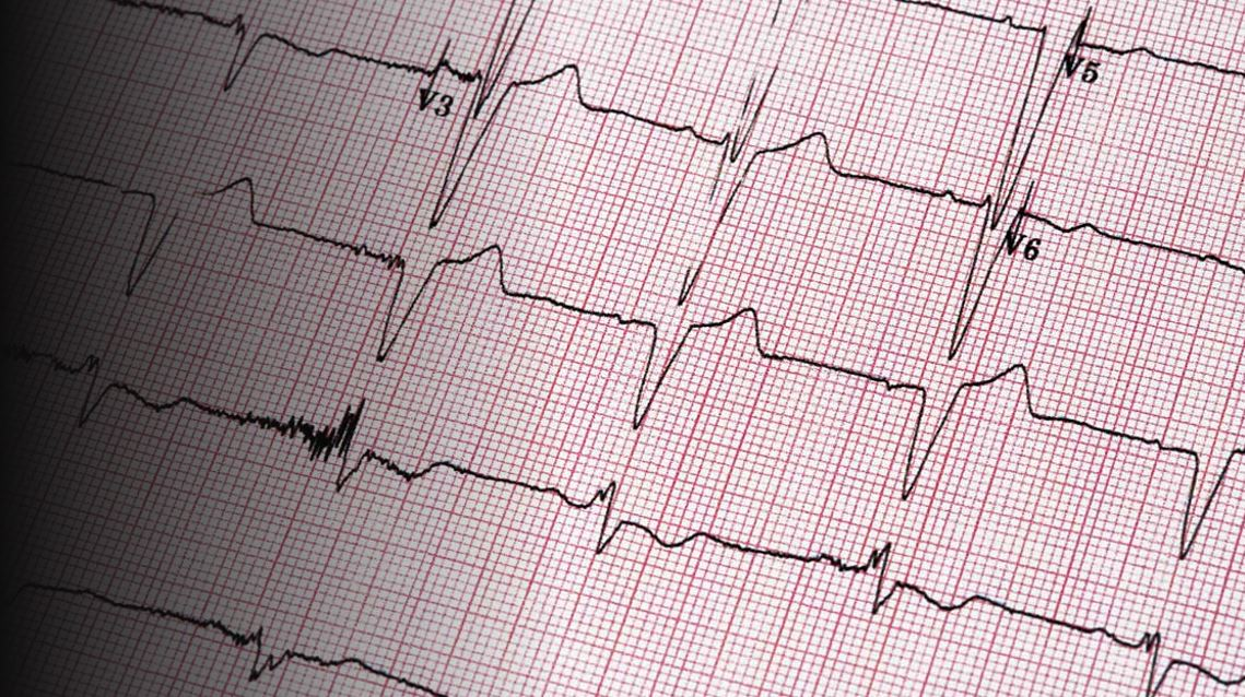 Medical Pharma Biotech MedTech - RACGP warns of higher costs for patients needing ECGs