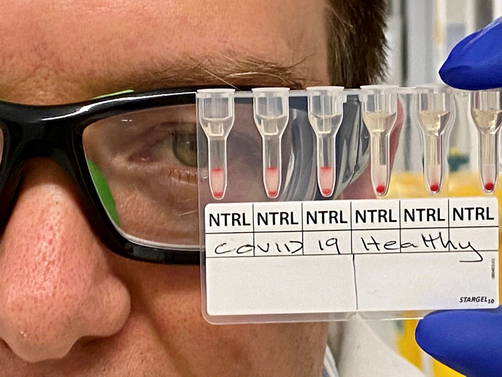 MedTech News - Breakthrough blood test detects positive COVID-19 results in 20 minutes
