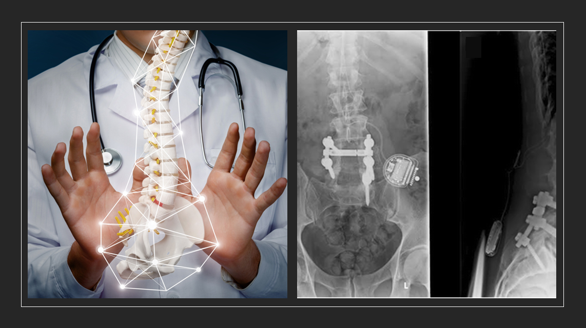 MedTech News - Spinal cord stimulator patient deaths, call for more tests before implant - Abbott, Boston Scientific, Medtronic and Nevro