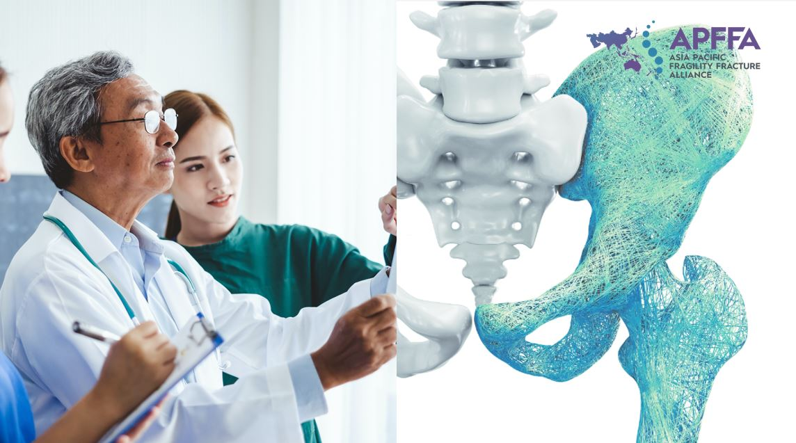 Medical Pharma Biotech MedTech - APFFA launches toolkit to reduce burden of osteoporotic fractures in the APAC region