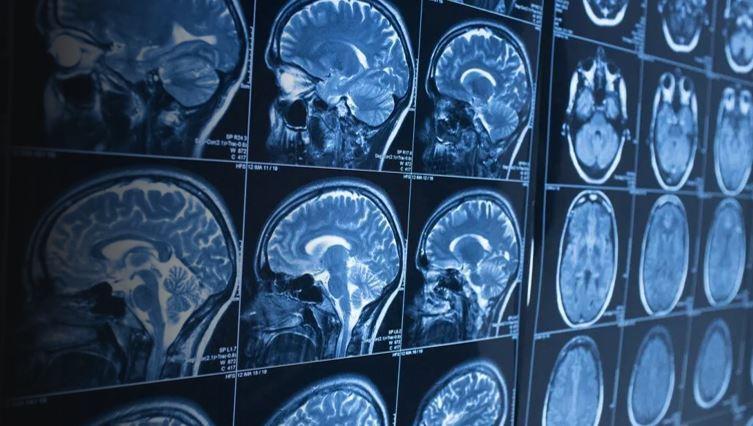 Pharma News - Fast-tracking drug development for neurodegenerative disorders