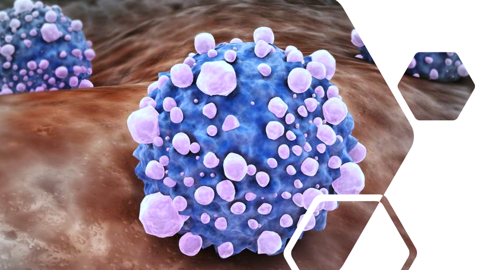 Biotech News - Amplia shows positive data in pancreatic cancer